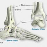 scoi-ankle